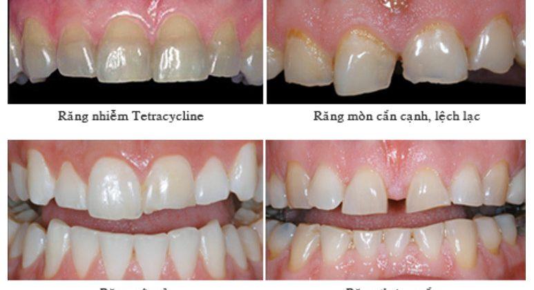 Khi bọc răng sứ cho răng cửa có cần phải mài răng và lấy tuỷ hay không?