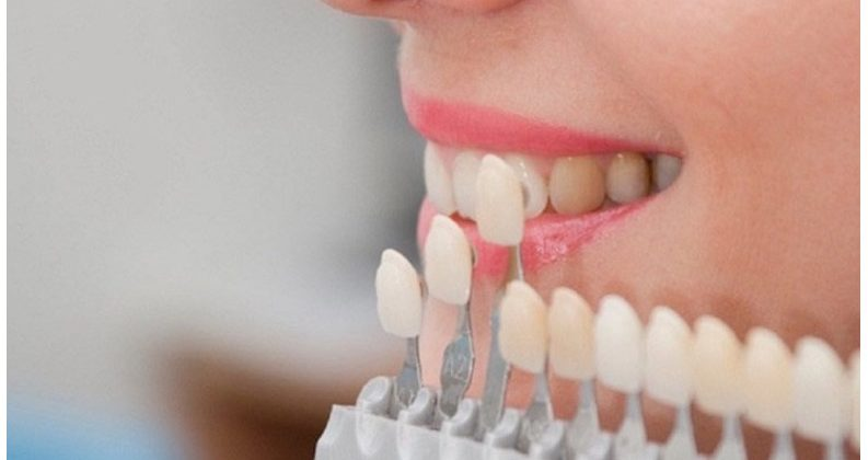 Tìm địa chỉ bọc răng sứ ở đâu tốt nhất tại tphcm