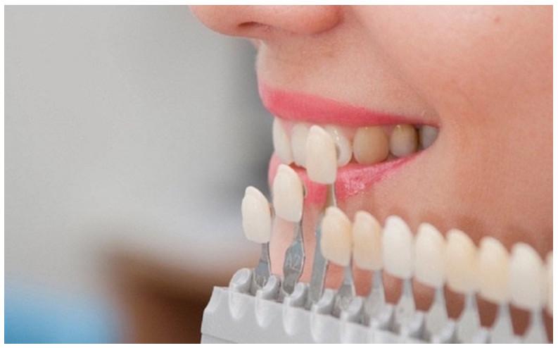 Bọc răng sứ ở đâu tốt