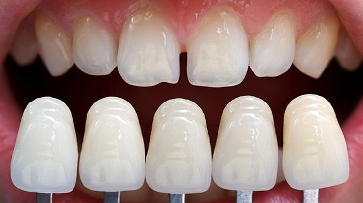 Bọc răng sứ cho hai răng cửa