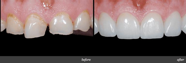 Bọc răng sứ titan: Có nên không và giá bao nhiêu?