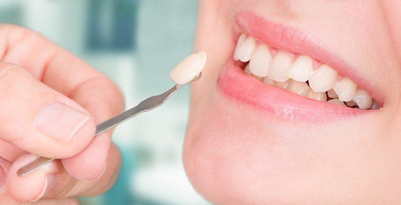 Công nghệ bọc răng sứ veneer mới có thể bạn chưa biết