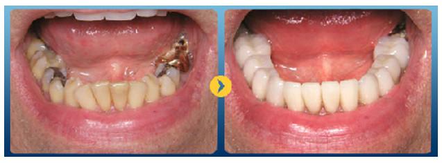 Bọc sứ cho răng sâu có phải là giải pháp tốt nhất ?