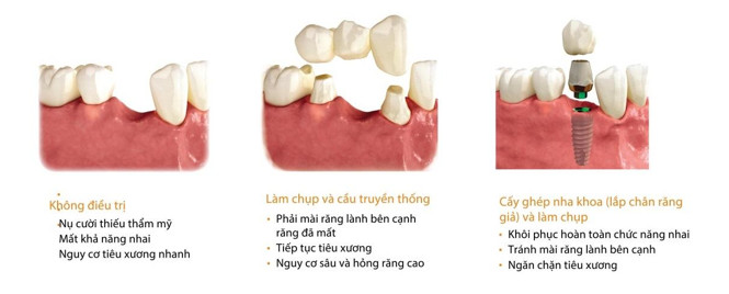 cac-phuong-phap-cay-implant