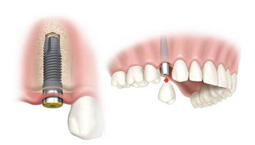 Cấy ghép implant là phương pháp hiện đại nhất hiện nay