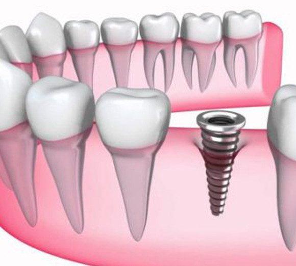 Cấy ghép implant có tốt không – Địa chỉ nha khoa uy tín