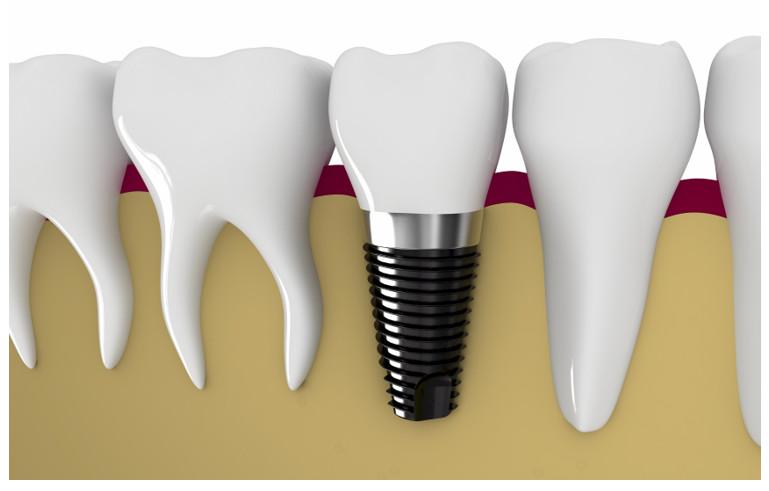 Bạn cần thời gian chờ đợi chân răng implant ổn định.
