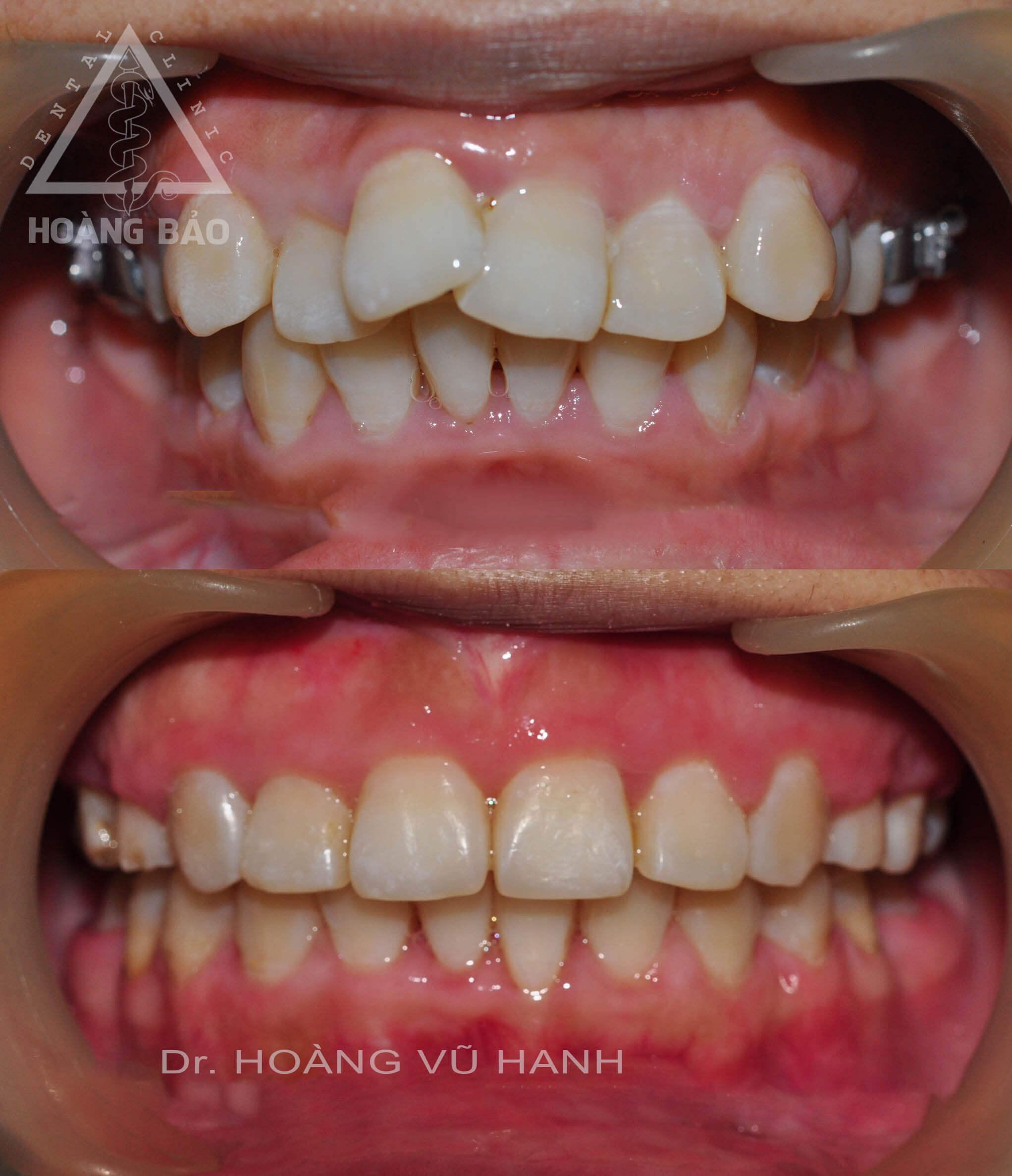 Chỉnh nha lệch răng