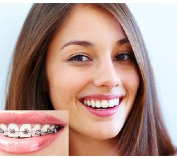 Tổng quan về phương pháp chỉnh nha niềng răng