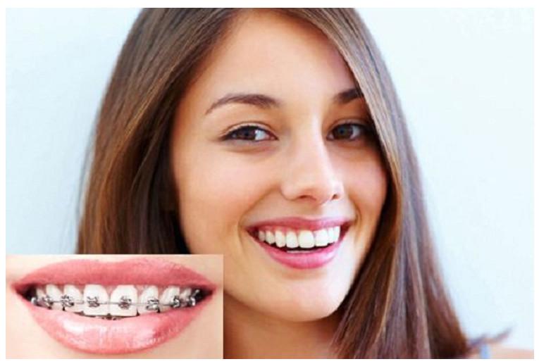 Bạn sẽ trở nên tự tin hơn khi niềng răng kịp thời