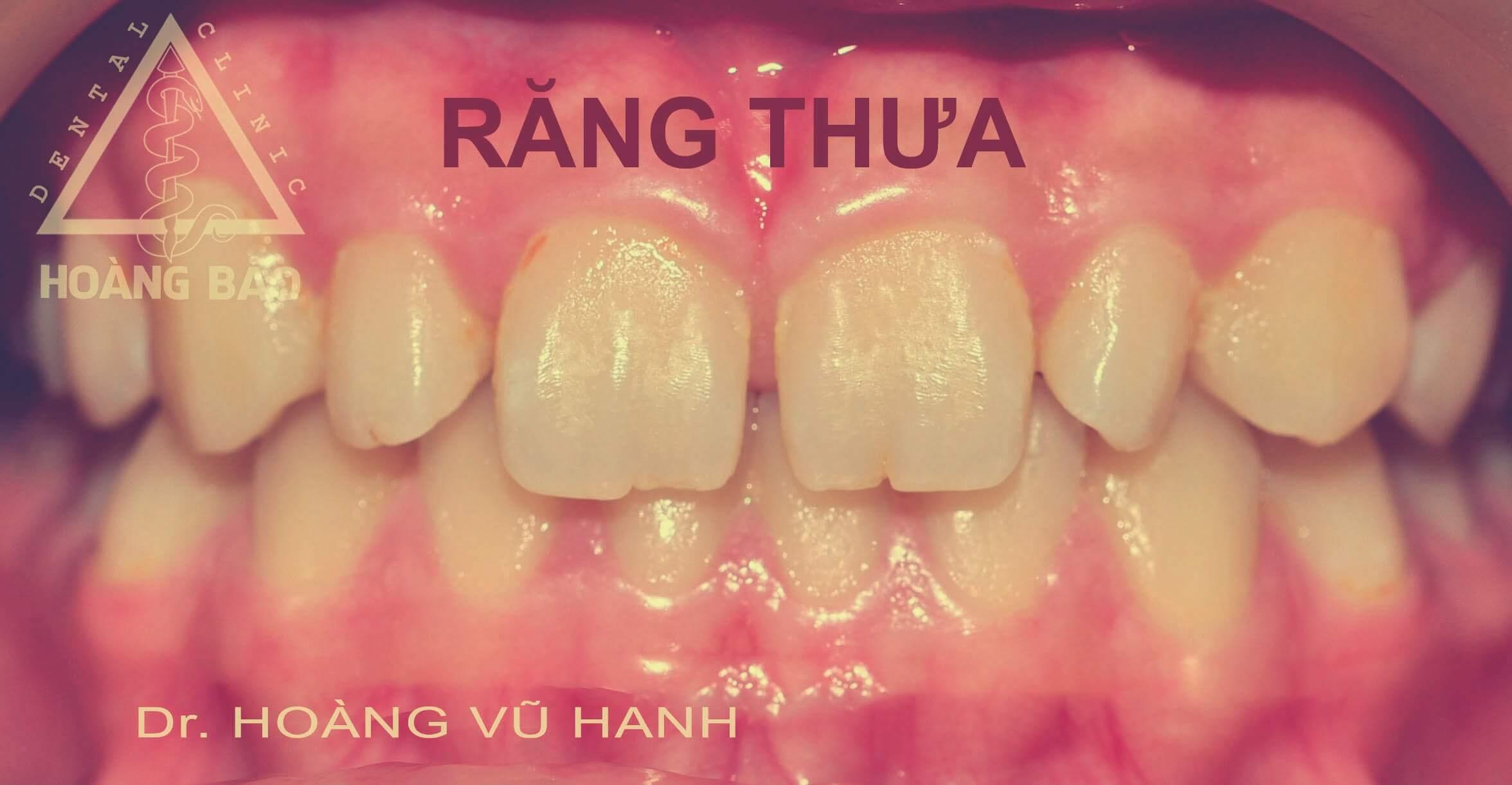 chinh-rang-thua-kp_nkhb