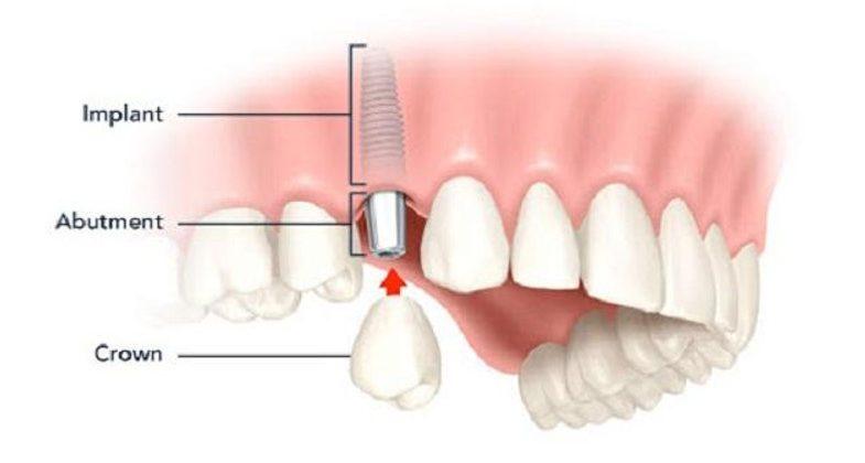 Tổng quan về kỹ thuật cấy ghép răng implant hiện đại