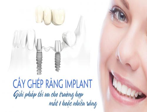 ky-thuat-cay-ghep-rang-implant