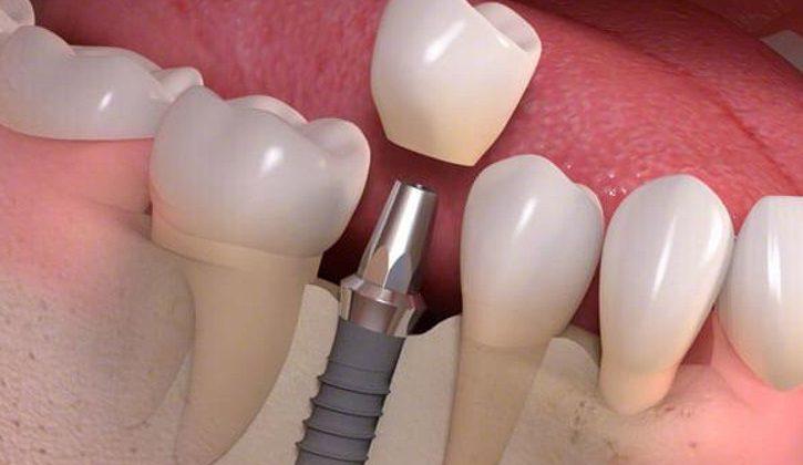 Làm răng implant mất bao lâu và có ưu điểm gì?