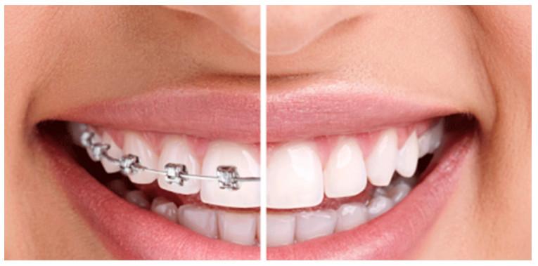 lựa chọn niềng răng để có được vẻ đẹp hoàn hảo nhất