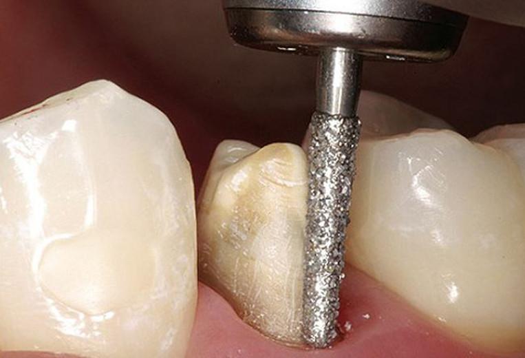 Cận cảnh hình ảnh mài cùi răng trước khi bọc răng sứ