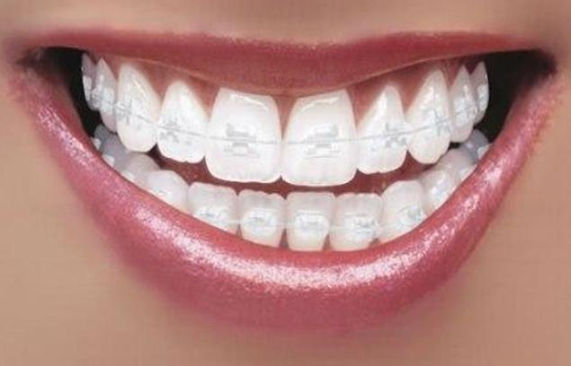 Niềng răng Damon clear