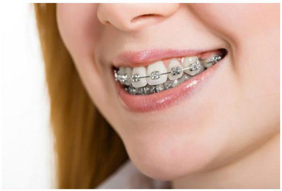 Niềng răng nhổ răng là chỉ định phổ biến của nha sĩ