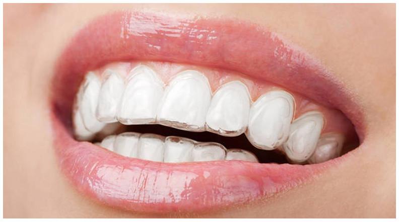 Phương pháp niềng răng trong suốt bằng khay invisalign