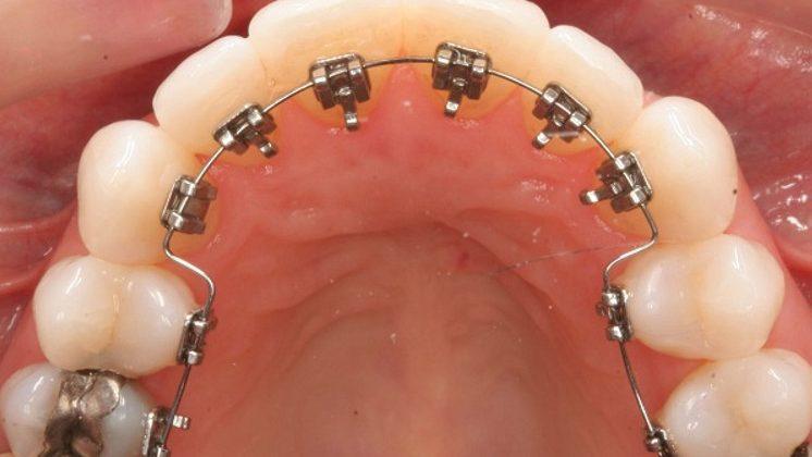 Niềng răng không lộ mắc cài – Phương pháp chỉnh nha không làm mất đi tự tin cho người niềng răng
