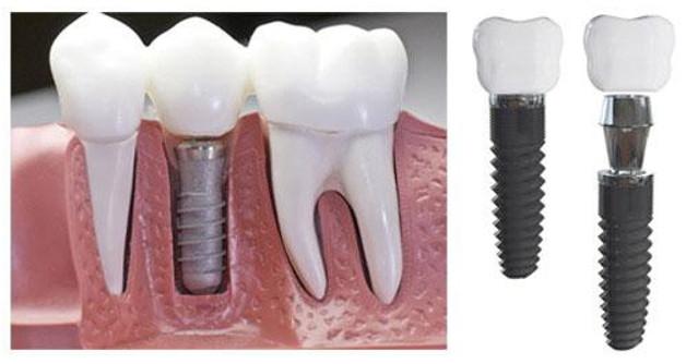 Răng cấy ghép implant