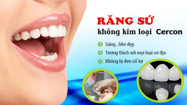 Giá bọc răng sứ cercon bao nhiêu tiền?