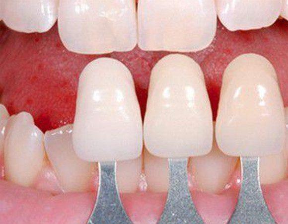 Những điều bạn cần phải biết khi bọc răng sứ không cần mài răng