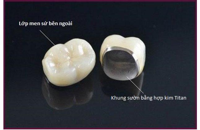 Trồng răng sứ titan có tốt không – Độ bền của răng sứ titan có cao không?