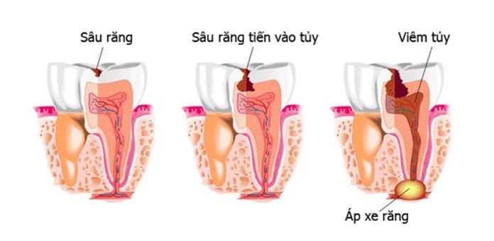Sâu răng đến tủy