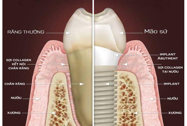 Bảng giá làm răng implant hiện nay là bao nhiêu?