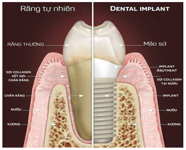 so-sanh-rang-tu-nhien-va- rang-implant