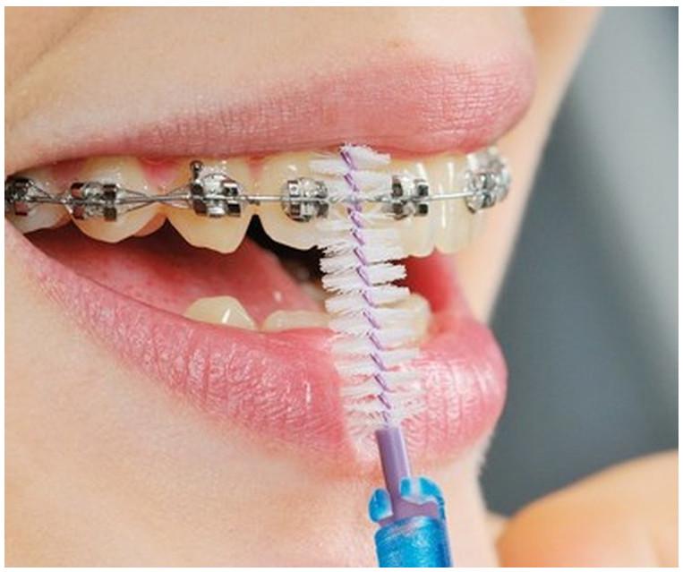 Phải vệ sinh răng miệng đúng cách sau khi niềng răng