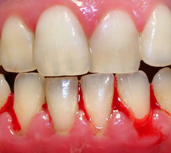 Giải đáp thắc mắc bọc răng sứ bị viêm lợi, hôi miệng phải làm sao?