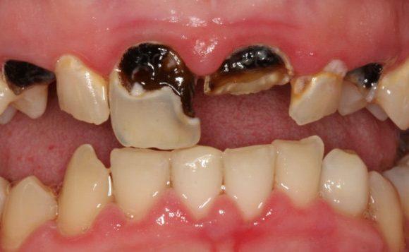 Răng sâu là gì? Nguyên nhân và cách chữa trị dứt điểm sâu răng hoàn toàn