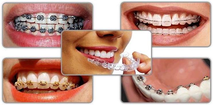 Niềng răng loại nào tốt cho từng trường hợp khác nhau của mỗi người