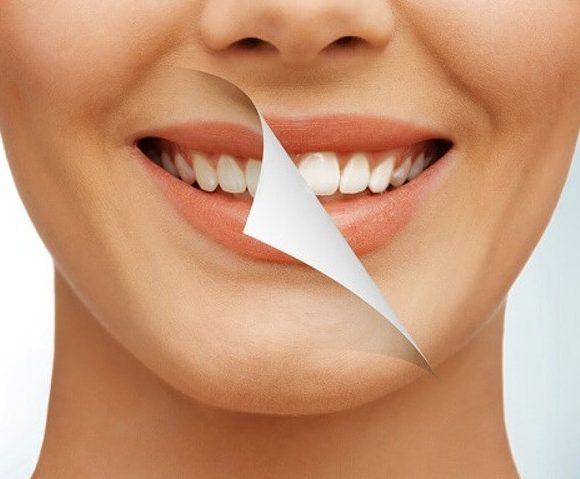 Tẩy trắng răng ở đâu tốt? Tiêu chí lựa chọn địa chỉ tẩy trắng răng uy tín