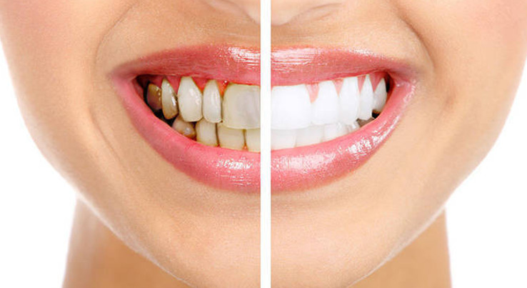 Có nên tẩy trắng răng hay không? Có những phương pháp tẩy trắng nào?