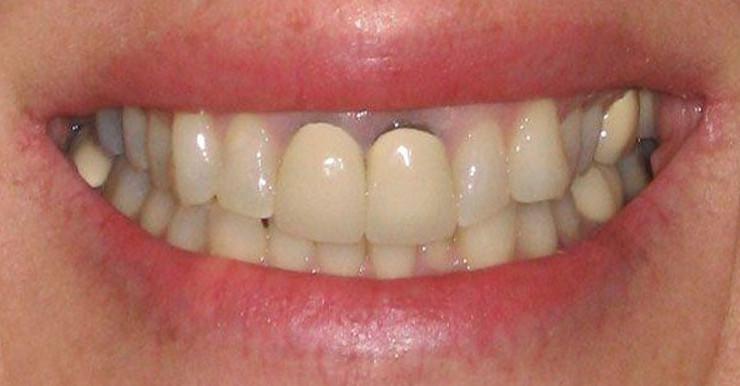 Khắc phục răng sứ bị đổi màu