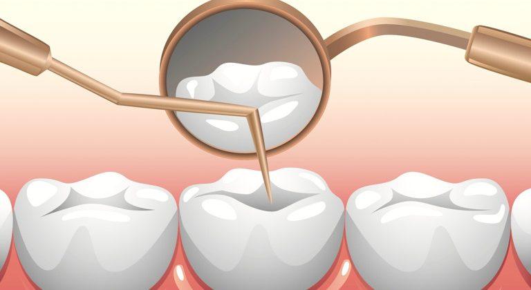 Lấy tủy răng có đau không và hết bao nhiêu tiền?