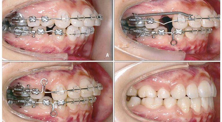 Phương pháp niềng răng hô cho người lớn
