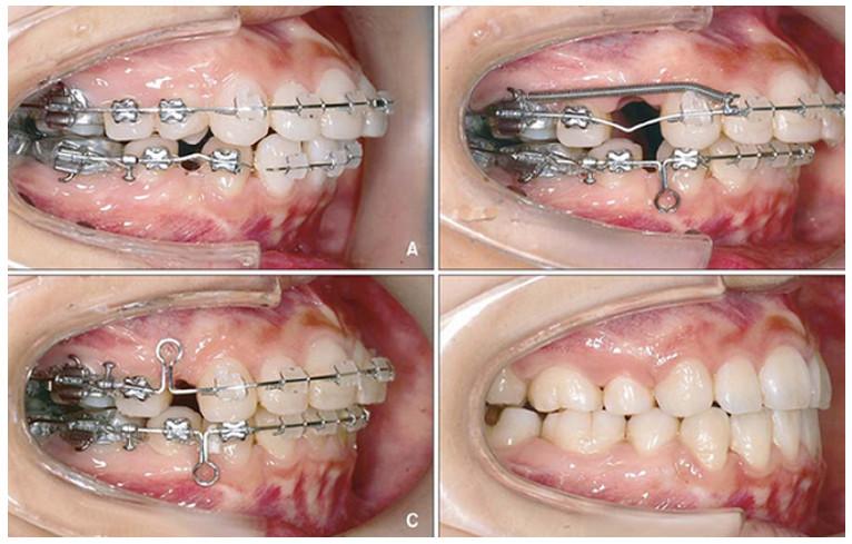 Bạn nên niềng răng khi răng bị thưa, hô hay mọc lệch lạc