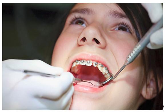 Niềng răng hô là phương pháp được rất nhiều người quan tâm