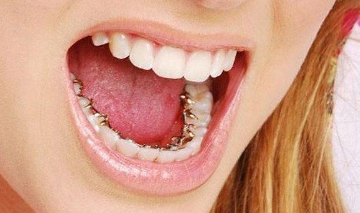 Liệu có thể niềng răng một hàm được không?