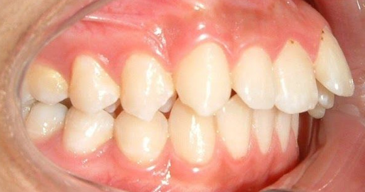 Người lớn niềng răng hô bao lâu thì hoàn thành