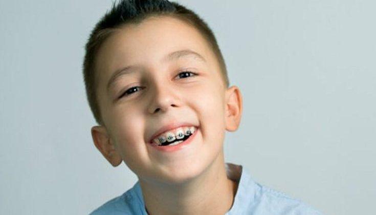 Nguyên nhân và độ tuổi thích hợp để niềng răng trẻ em