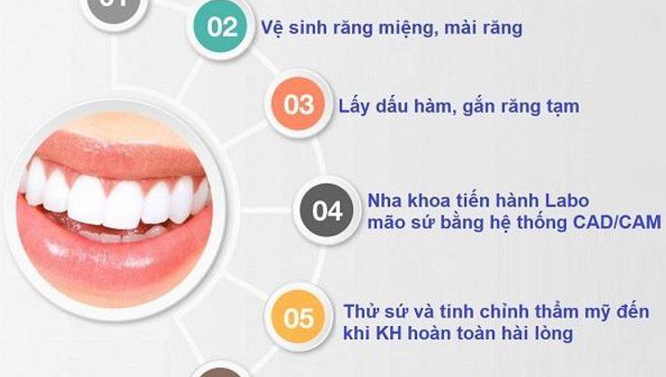 Quy trình bọc răng sứ chuẩn quốc tế tại Nha khoa Hoàng Bảo