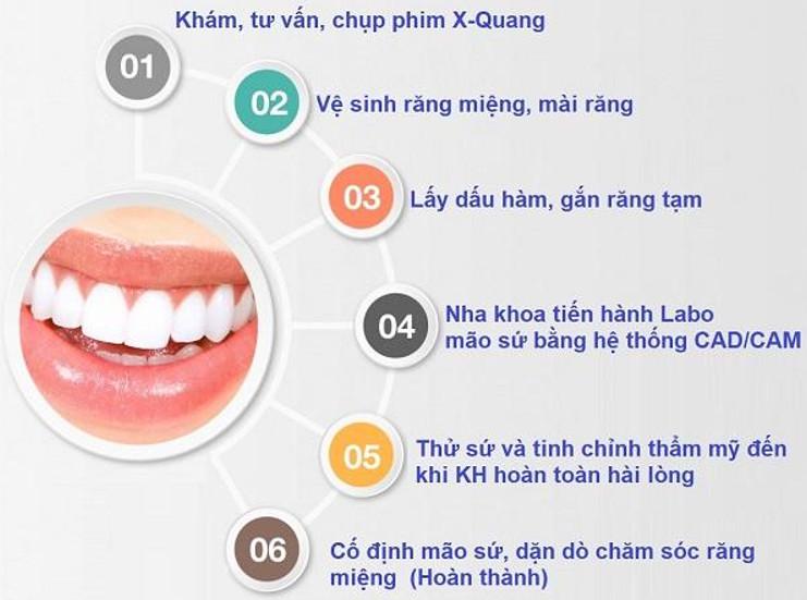 Mô tả quy trình bọc răng sứ tại nha khoa