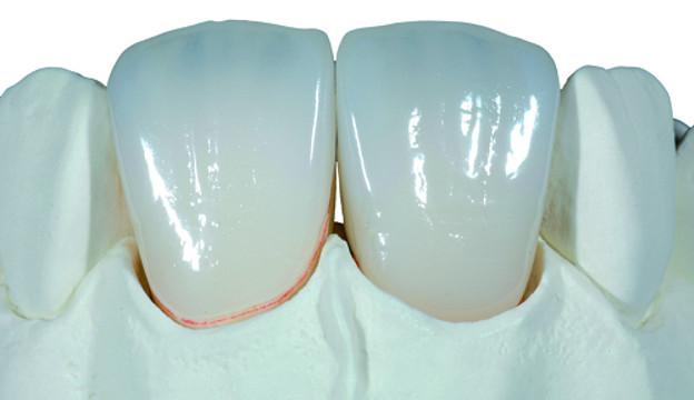 Răng sứ bị đổi màu xanh
