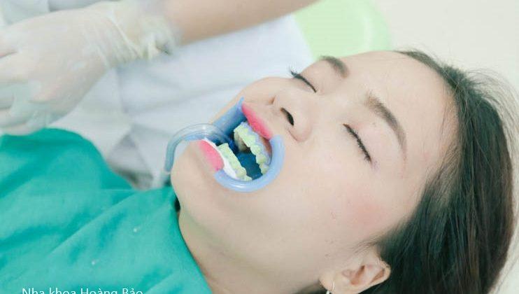Cách tẩy trắng răng an toàn và hiệu quả nhất?