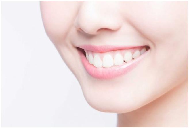 Răng trắng làm tăng tính thẩm mỹ